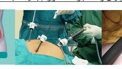 صورة أحدث طرق جراحات أورام القولون بالمنظار الجراحى